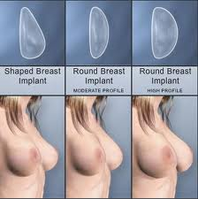 breast implant prices cosmetic surgery
