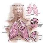 mesothelioma injury attorney
