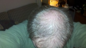 thinning hair on man's head